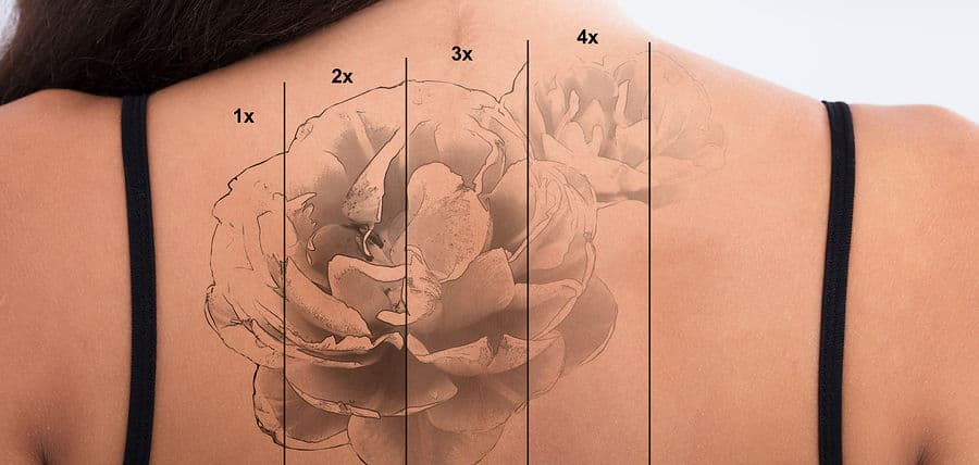 stage of tattoo removal